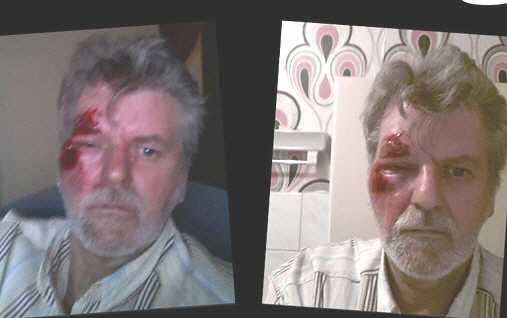 manfred meier - Gegen Hartz IV Aktivist wurde zusammengeschlagen